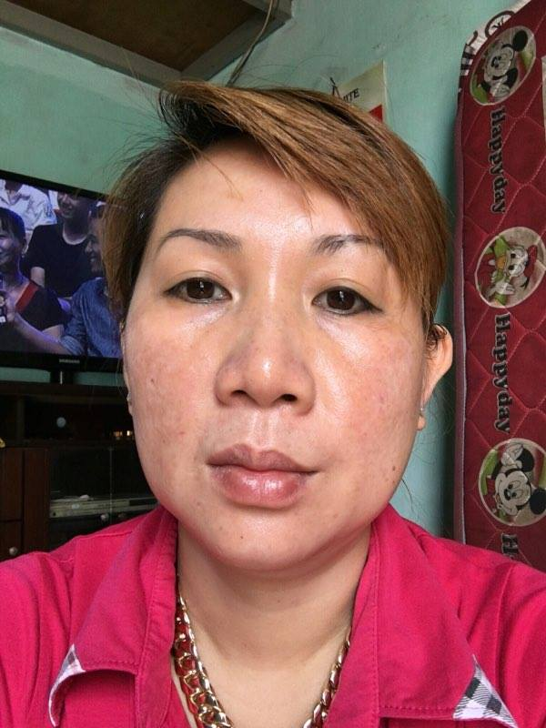 Khách hàng Nguyễn Hồng sau khi điều trị tại thẩm mỹ viện nổi tiếng TP.Hồ Chí Minh