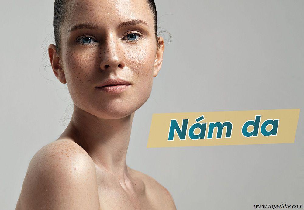 Top White các vấn đề về da