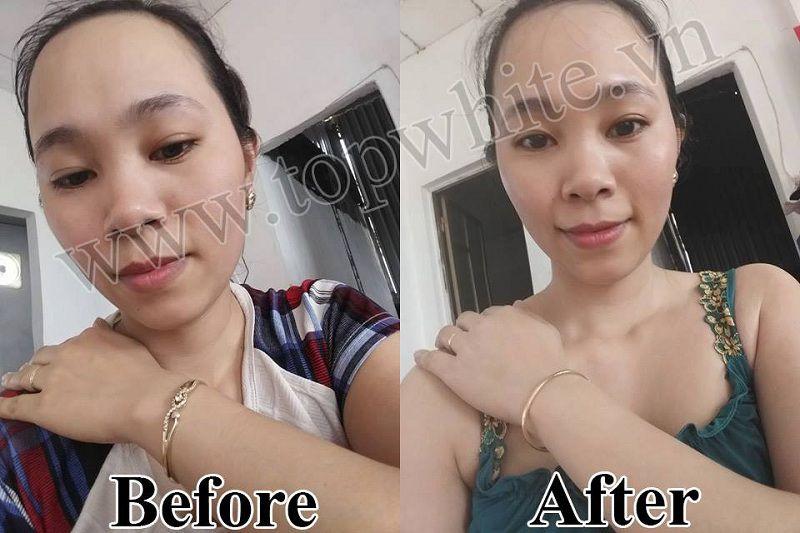 Top White hình ảnh khách hàng trước và sau khi dùng sản phẩm