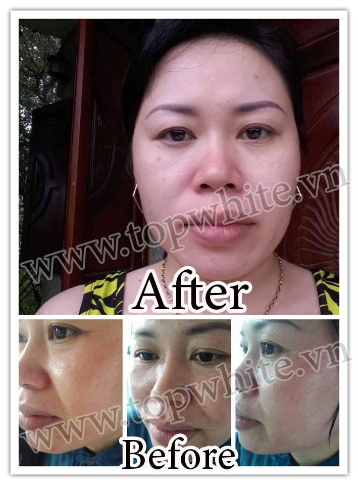 hình ảnh khách hàng trước và sau khi dùng