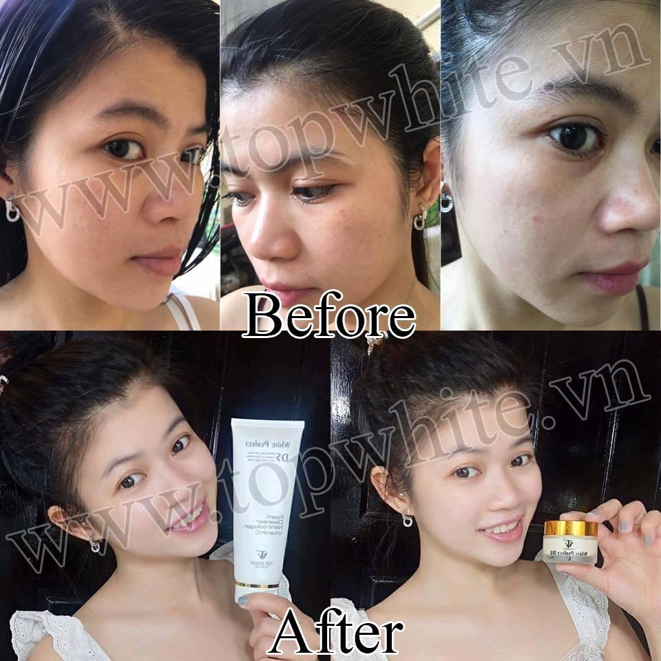 hình ảnh khách hàng trước sau sử dụng