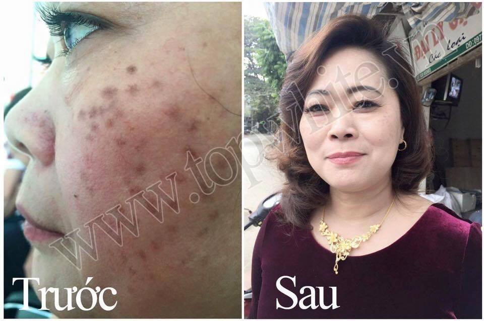 điều trị sạch nám tàn nhang trên da cùng Top White