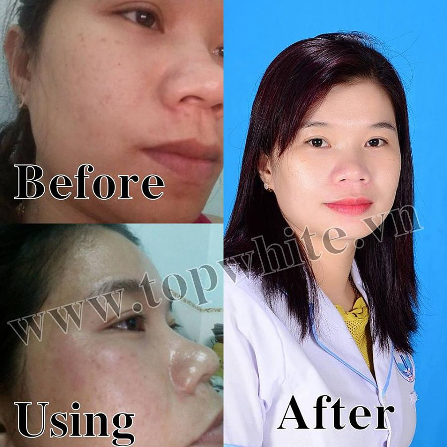 Top White hình ảnh khách hàng trước và sau khi sử dụng