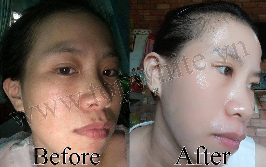 hình ảnh khách hàng trước và sau khi dùng top white